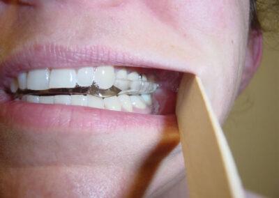 Oral Appliance